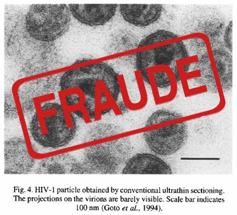 ¿EXISTE O NO EL SIDA? Vih-fraude